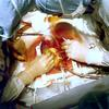 cardiac surgery